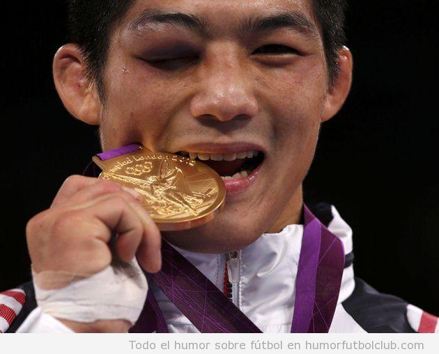 El luchador de lucha grecorromana surcoreano, Hyeonwoo Kim, con un ojo morado mordiendo la medalla de oro en JJOO 2012