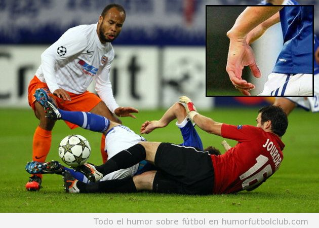 Julian Draxler lesión de muñeca con el Schalke