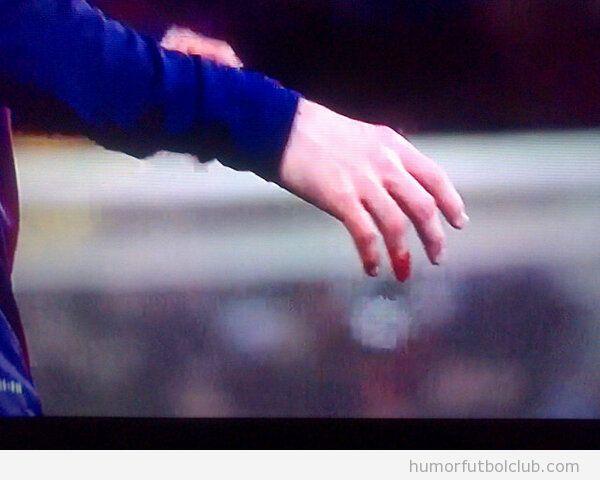 Imagen del dedo de Messi sangrando en el Bara Sevilla
