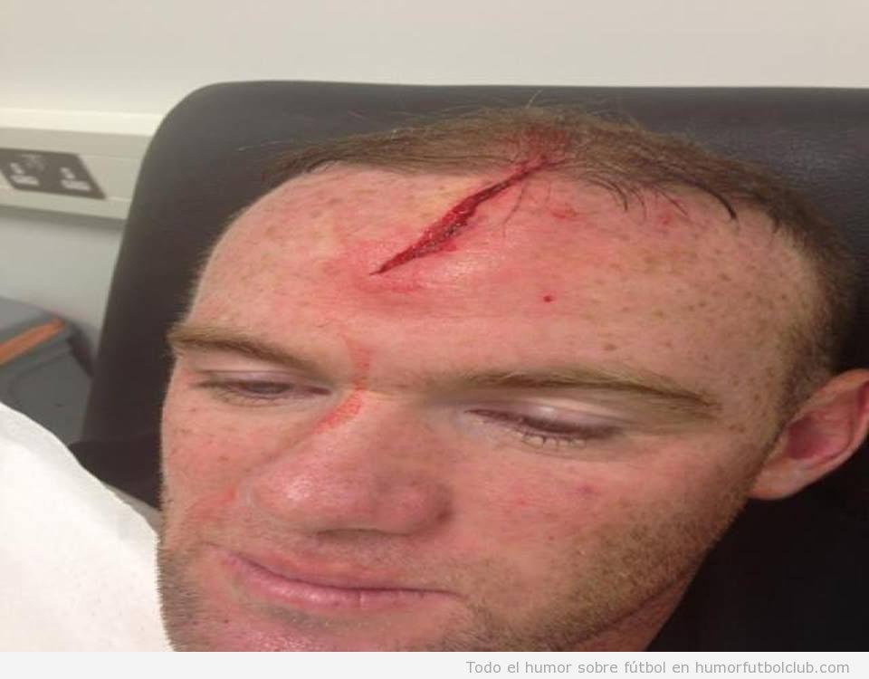 Foto de la herida en la cabeza de Rooney