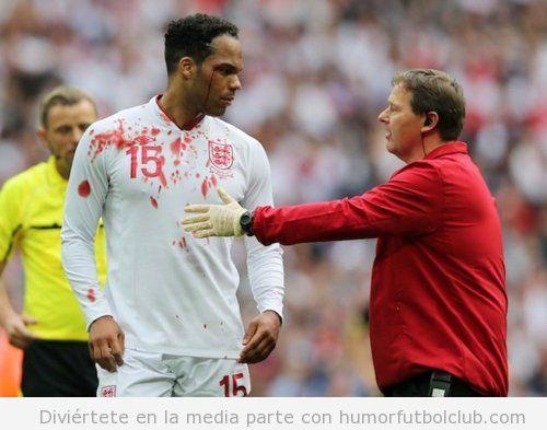 El futbolista Lescott con la cara y la camiseta llena de sangre blood