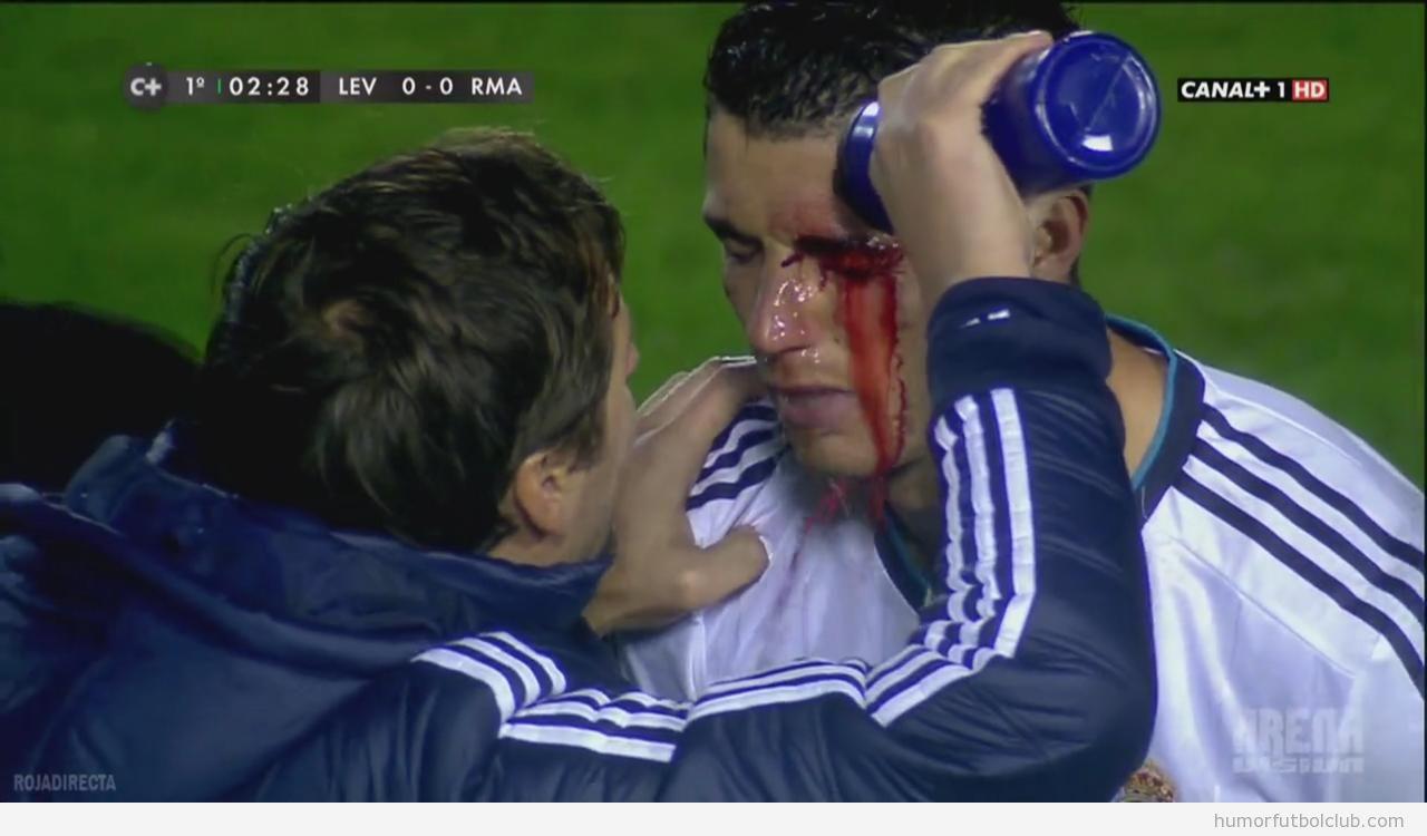 Foto de Cristiano Ronaldo con el ojo sangrando después del codazo de David Navarro del Levante