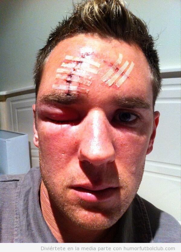 Cara de Shane Smeltz Nueva Zelanda vs Nueva Caledonia