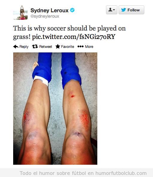 Tweet con fotos de pierna destrozada de la jugadora de fútbol Sidney Leroux