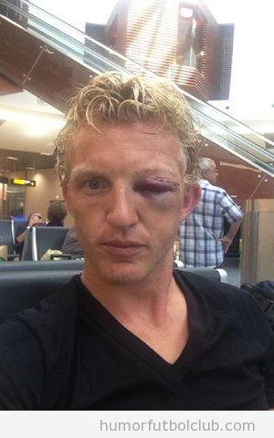 Foto de las lesiones en la cara de Dirk Kuyt