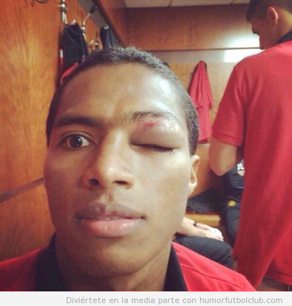 Antonio Valencia, Manchester United, ojo morado