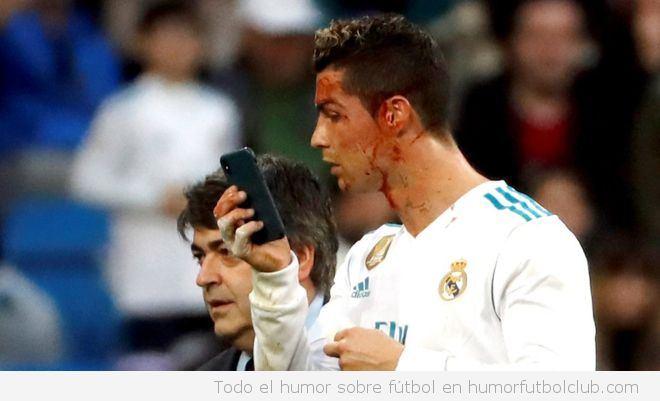 Cristiano Ronaldo se mira en el móvil la sangre en la cara